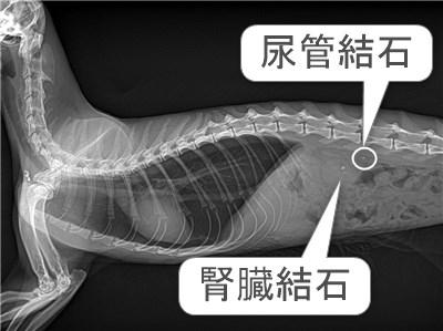 尿管結石レントゲン